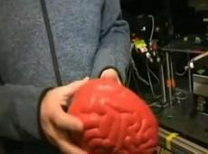 EUA iniciam mapeamento de cérebro visando cura de Alzheimer