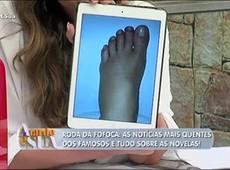 Saiba por que Xuxa postou foto do pé inchado